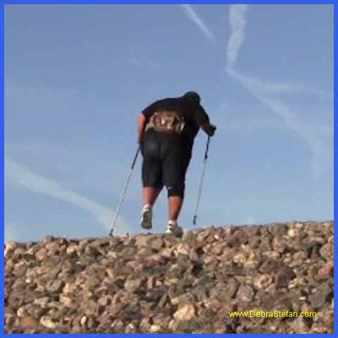 Trekking Poles- 500Lb man finds walking stability with trekking pole.