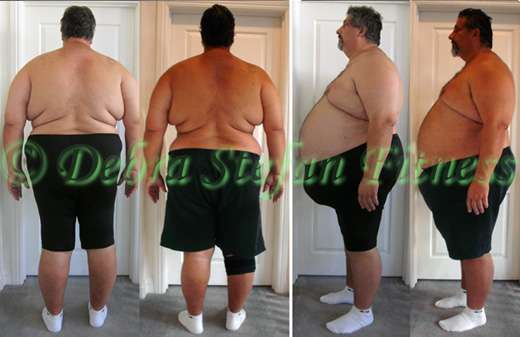 Morbidly Obese Man Down First 50Lbs